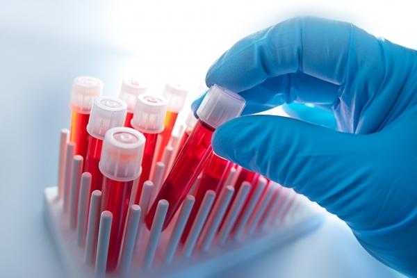 Що можна дізнатись в біохімічному аналізі крові?