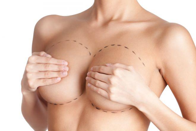 Як обрати пластичного хірурга для збільшення грудей