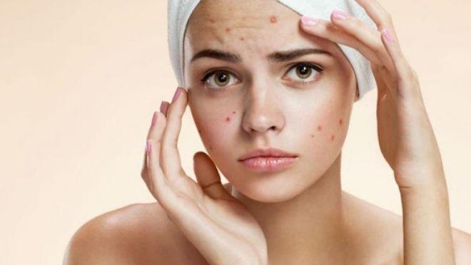 Эффективное решение для проблемной кожи