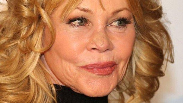 Обличчя відомої актриси вразила страшна хвороба