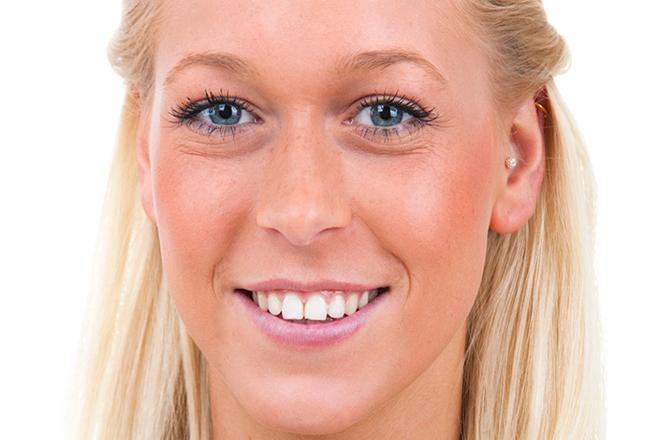 Які косметичні проблеми виникають через хвороби?